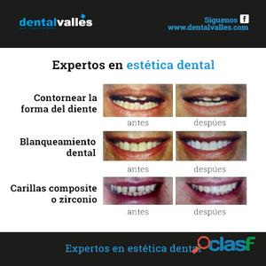 Especialistas en estética dental