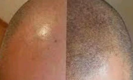 Curso on line tricopigmentación