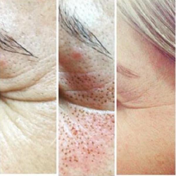 Plasmapen (elimina arrugas sin cirugía)